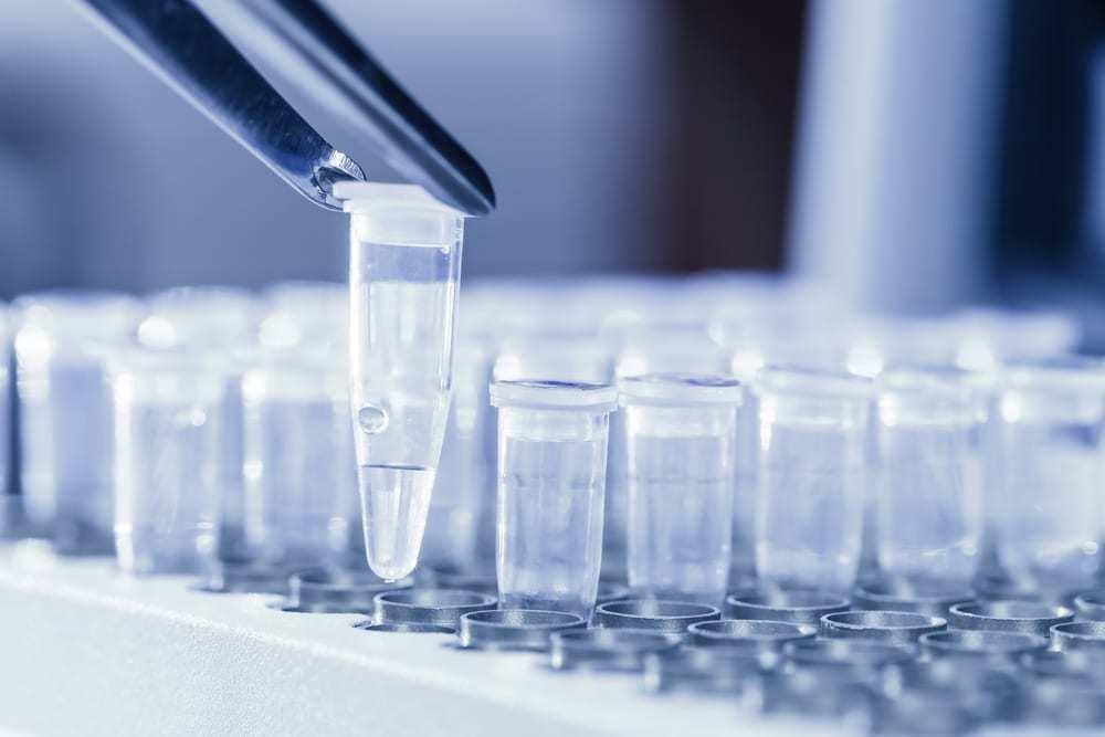 Loading DNA samples for PCR test