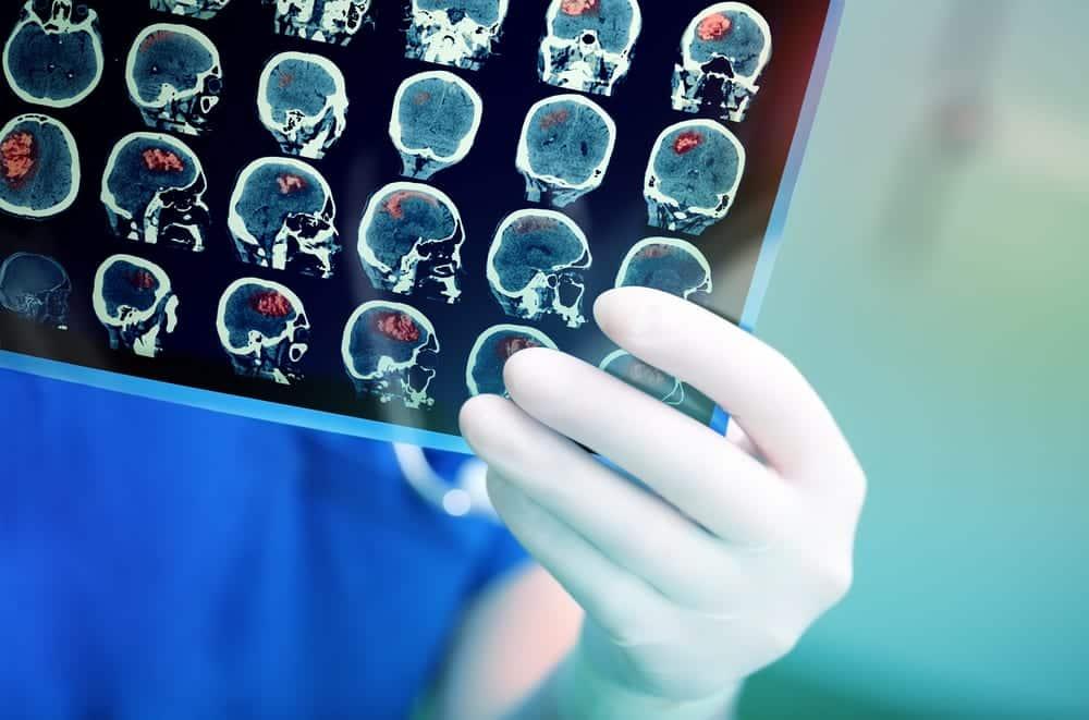Close-up of medical professional examining MRI scan